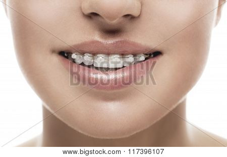 Braces Teeth Mouth Orthodontics Woman
