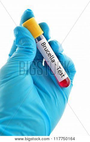 Brucella test