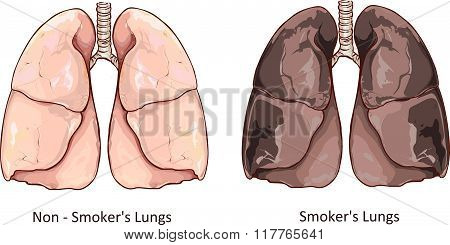 Vector Illustration Of A Healthy Lung And Smokers Lung