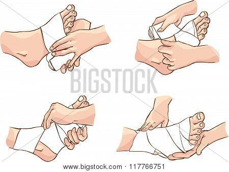 Vector Illustration Of A  Medical Foot Bandage Technique