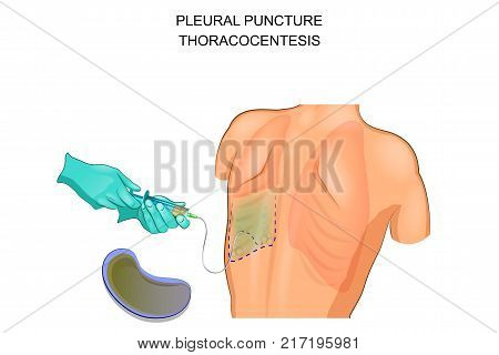 vector illustration of a thoracocentesis a pleural puncture