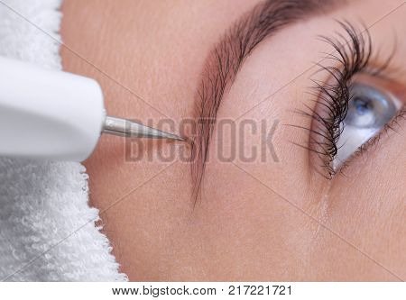 The cosmetologist makes the procedure treatment of Couperose of the facial skin of a beautiful young woman in a beauty salon.Cosmetology and professional skin care.