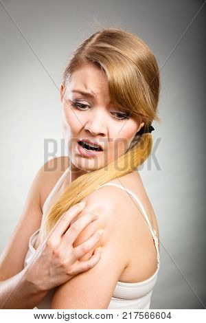 Health problem skin diseases. Young woman scratching her itchy arm with allergy rash