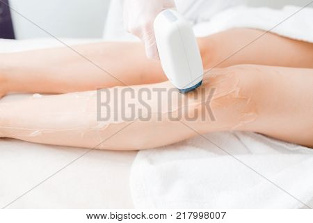 Laser epilation and cosmetology. Hair removal on ladies legs. at cosmetic beauty spa clinic. Hair removal cosmetology procedure from a therapist. Cosmetology and SPA concept.