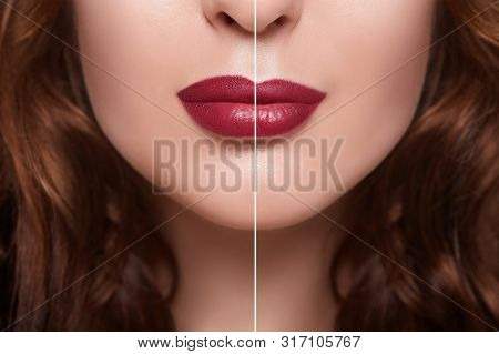 Before And After Lip Filler Injections. Fillers. Lip Augmentation. Beautiful Perfect Lips. Sexy Mout