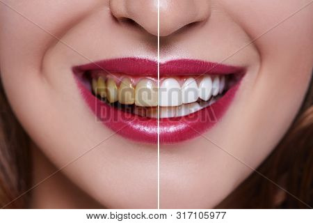 Woman Teeth Before And After Dental Treatment. Teeth Whitening. Happy Smiling Woman. Dental Health C