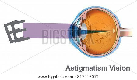 Astigmatism Vision. 3d Illustration, Transparent Background Png.