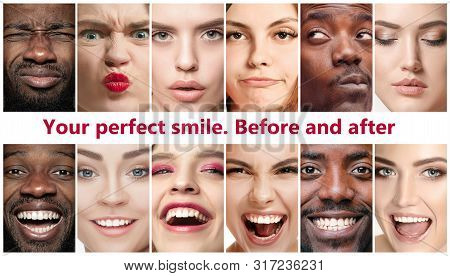 Beautiful Close Up Male And Female Portraits. Concept Of Beauty, Correction, Treatment And Teeth Whi