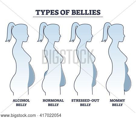 Types Of Bellies With Abdominal Fat Problem In Stomach Area Outline Diagram