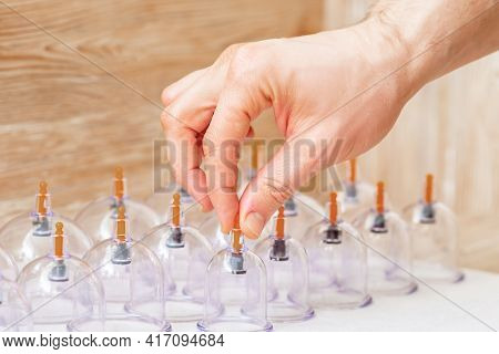 Hand Takes Vacuum Massage Glass Jar From Medical Set Of Traditional Chinese Cupping Therapy. Cupping