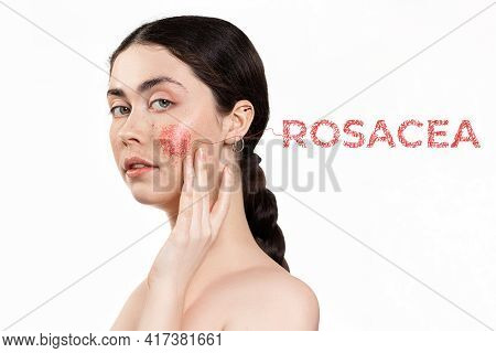 Cosmetology And Dermatology. Portrait Of A Young, Beautiful Woman With Painted Red Cheek. White Back