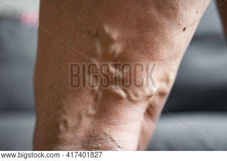 Varicose Vein Close Up Leg. Senior Woman Health Problem. Foot With Diseased Veins. Health Care, Podi