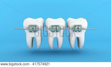 Teeth Braces. Teeth Alignment. Three White Teeth With Braces On A Blue Background. 3d Render.