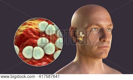 Streptococcus Pneumoniae Bacterium As A Cause Of Otitis Media. 3d Illustration Showing Purulent Infl