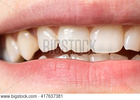 Macro Close-up Of Human Teeth. Shows The Chipped Tooth. The Effect Of The Cutters Tooth From Biting