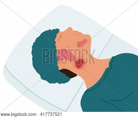 A Patient With A Diseased Submandibular Salivary Gland. Vector Illustration Of Sialolithiasis.