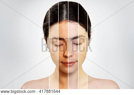Portrait Of A Brunette With Closed Eyes Of A Woman, With A Face With A Different Skin Color. Isolate
