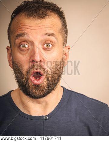Shocked Amazed Beared Adult Guy Having Astonished Full Of Disbelieve Face Expression.
