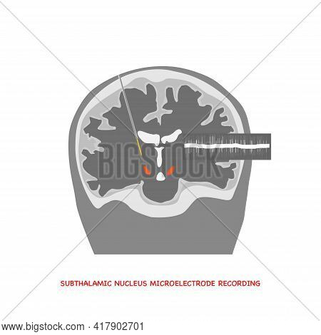 Coronal View Illustration Of Microelectrode Recording Of Human Brain In Subthalamic Nucleus For Park