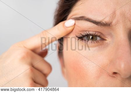 Close-up Portrait Of Caucasian Middle-aged Woman Pointing To The Wrinkles On The Upper Eyelid. Signs