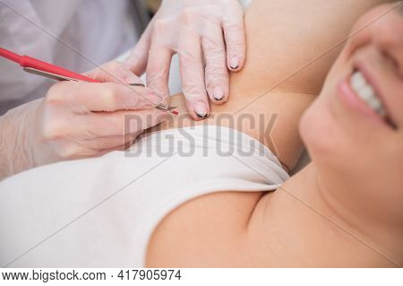 Woman On Electro Epilation On Armpits. Hardware Permanent Removal Of Unwanted Body Hair