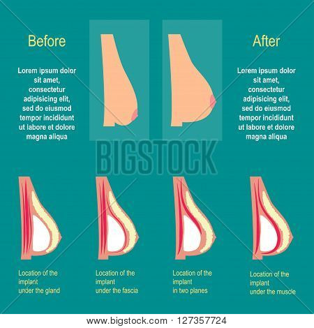 The breast enlargement. The installation of the implants. Plastic surgery breast. The methods of installation of the implants in the chest. The result of plastic surgery. Vector illustration. Flat design