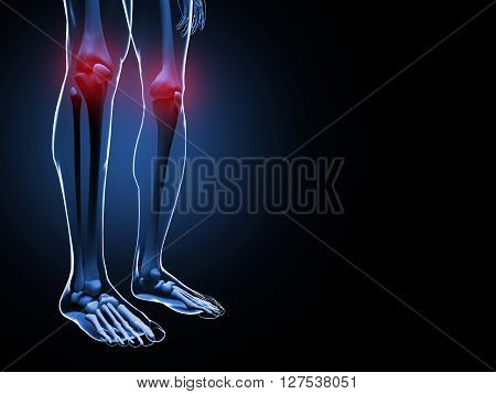 3d illustration of Knee Pain Skeleton on black background