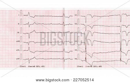 Ecg With Acute Period Of Large-focal Myocardial Infarction Of Anterior Wall Of Left Ventricle, Compl
