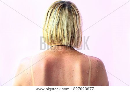 Print Of Sunburn On The Back Of A Woman. Print Of Brassiere On The Female Body After Beach