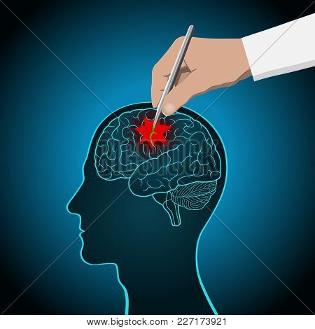 The Concept Of Brain Recovery, Memory, Stroke, Treatment Of Brain Diseases