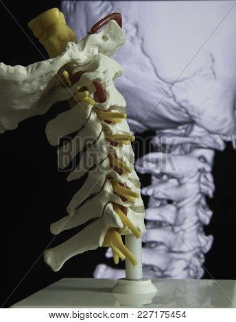 Cervical Spine Model And Mri Picture