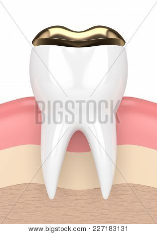 3D Render Of Tooth With Dental Golden Onlay Filling
