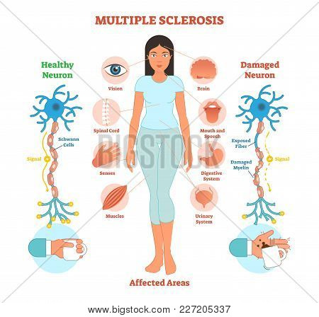 Multiple Sclerosis Anatomical Vector Illustration Diagram, Medical Scheme With Affected Area Icons A