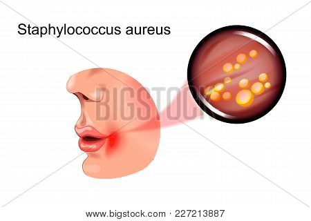 Vector Illustration Of A Sore On Face. Staphylococcus