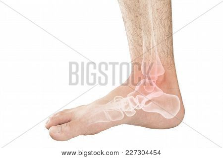 Foot Bones Pain White Background Foot Injury