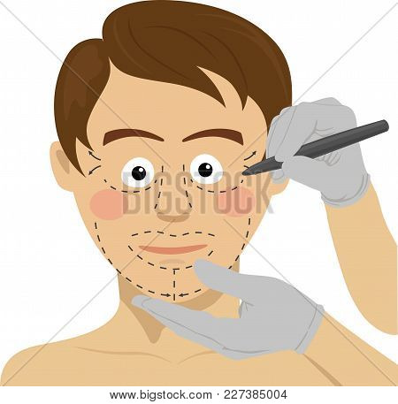 Surgeon Drawing Marks On Male Face. Plastic Surgery Concept On White