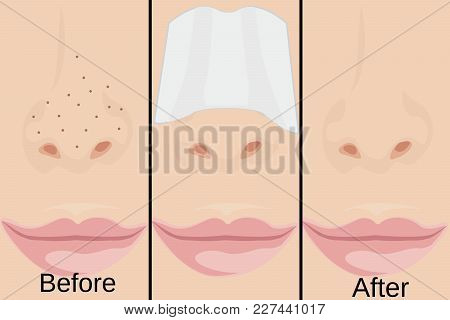 Blackheads On Nose Vector Illustration Showing Skin Problems
