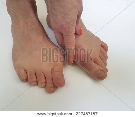 Valgus Female Leg On White Background Swollen, Callus, Deformation, Adult, Inflammation, Arthritis,