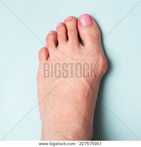 Bunion In Foot. Valgus Deformation From Narrow Shoes