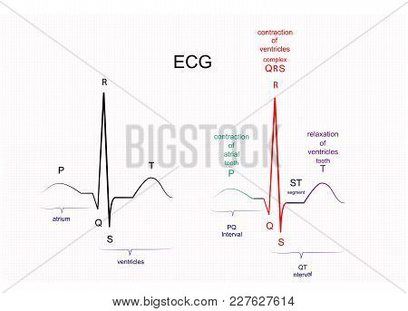 Illustration Of Ecg Interpretation. Ecg Of A Healthy Person