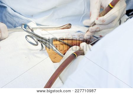 Surgical Procedure