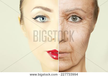 Aging Problems  Of Face Skin Halves Before And After