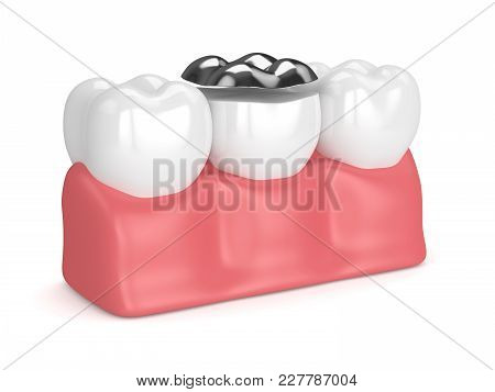 3D Render Of Teeth With Dental Onlay Amalgam Filling