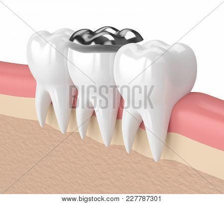 3d Render Of Teeth With Dental Onlay Amalgam Filling In Gums