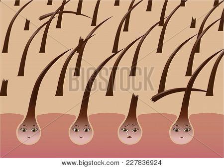 Cartoon Hair Follicles On The Scalp Suffer From Brittleness. Vector Illustration