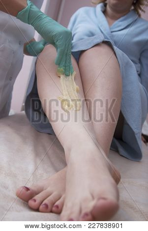 Depilatory Procedure With Sugar Ppaste. Removing Hair On Women's Legs. Procedure Sugaring In A Beaut