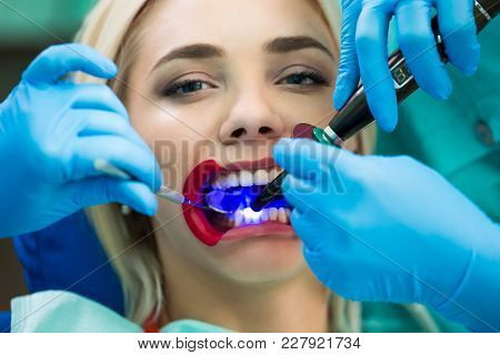 Dentists Hands Working On Young Woman Patient With Dental Tools. Female Patient With Retractor At Th