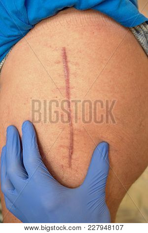 Medicine Doctor Check Scar. Patient  Hip Joint That Was Affected By Arthritis And Replacing It With