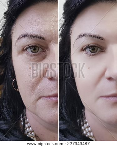 Face Woman Wrinkles Before And After Revitalization, Removal