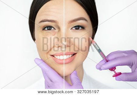 Comparison Woman's Face With Wrinkle And Smooth Young Face After Beauty Injections. Aged Facial Skin